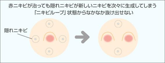 赤ニキビが治っても隠れニキビが新しいニキビを次々に生成してしまう「ニキビループ」状態からなかなか抜け出せない