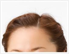 髪の生え際ニキビの原因は?